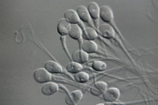 embriyo saklama